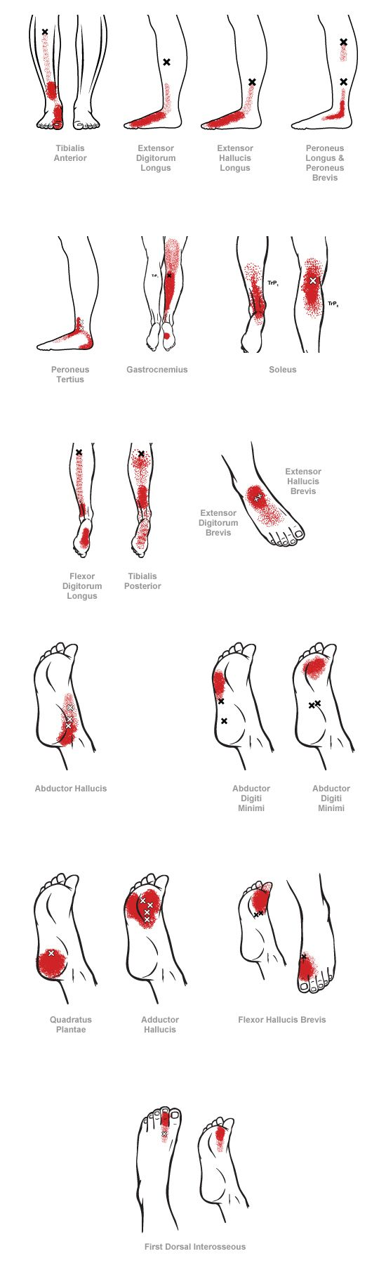 trigger point referral pain patterns for the ankle & foot ...