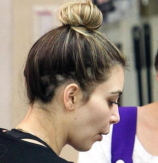 Beware Traction Alopecia Female Hair Loss Resulting