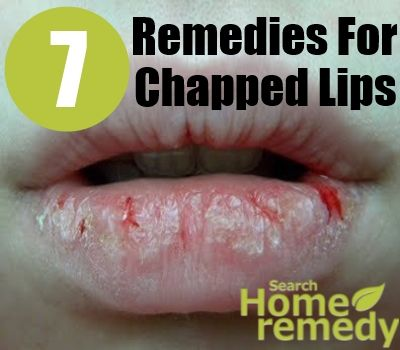7 Home Remes For Chapped Lips
