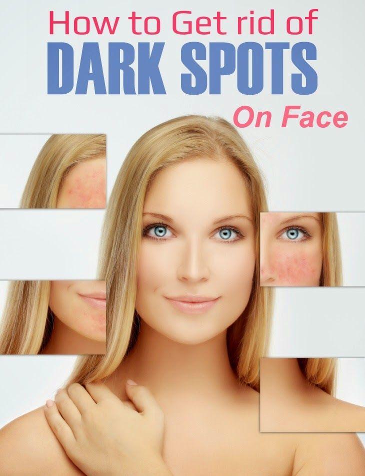 How to get rid of dark spots on face tips park cheryl