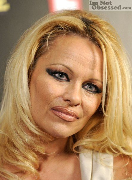 Pamela Anderson Shes Beautiful But I Think Her Eye