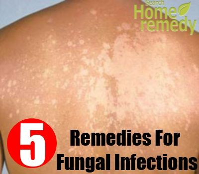 Best 25 Fungal Infection Ideas On Pinterest