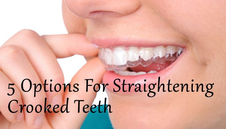 how to straighten teeth at home diy