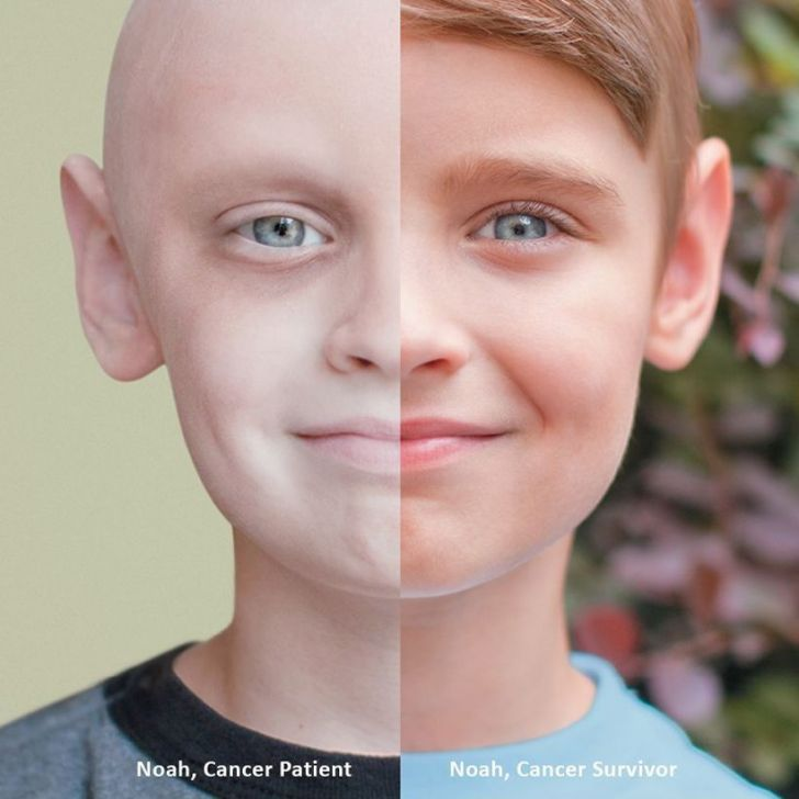 فرحة العلاج من السرطان