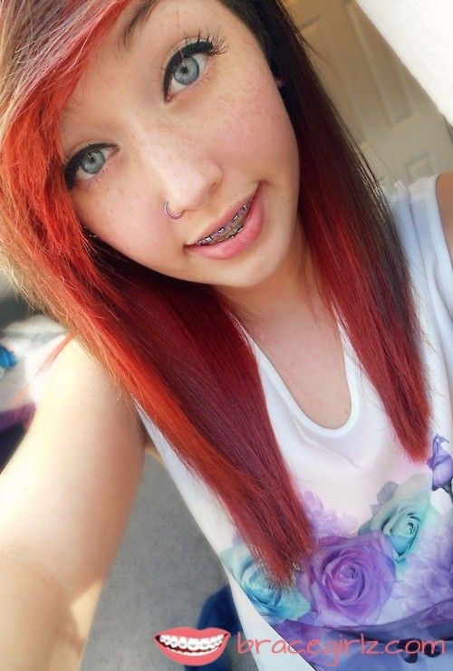 Sweet Blue Eys Tooth Braces Girl With Freckles And Nose