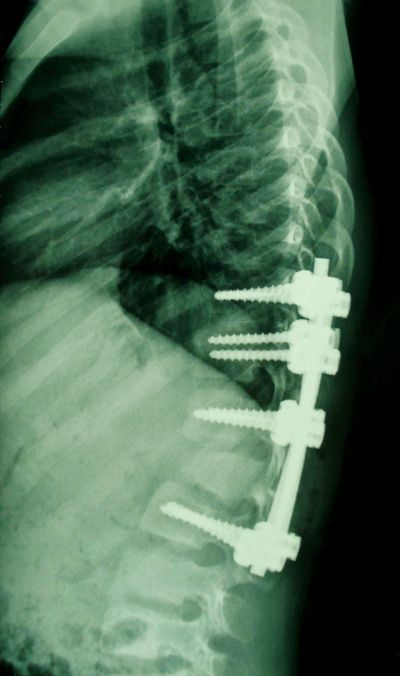 1000+ images about Non-surgical Scoliosis on Pinterest ...