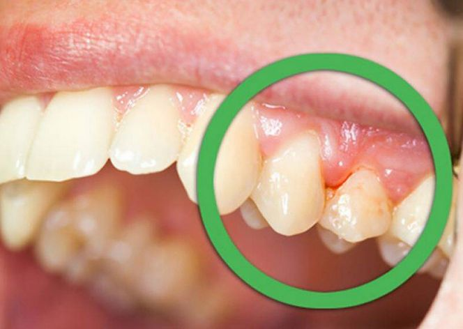 Best Home Remedies For Gingivitis If You Had A Tooth