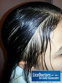 1000 images about head lice treatments on pinterest store lice shampoo and lice eggs
