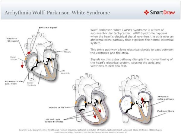 7 best images about Wolff Parkinson White Syndrome on ...