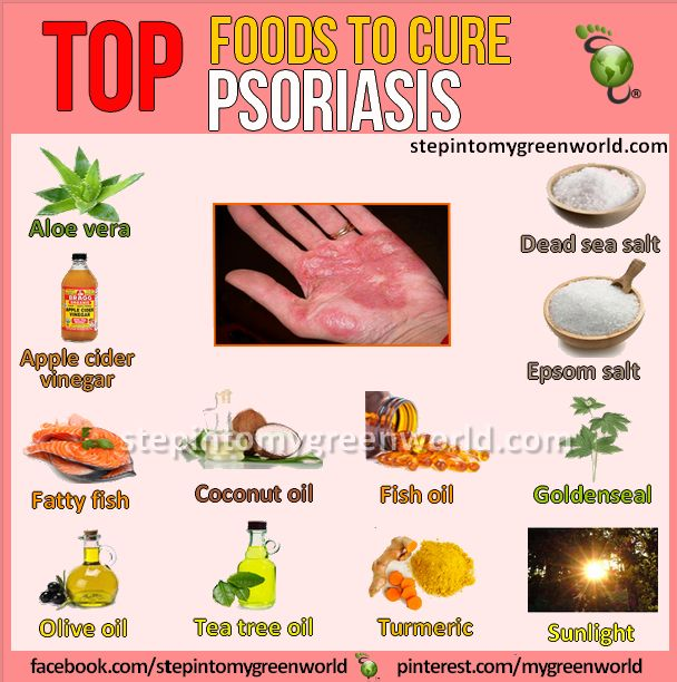 25+ best ideas about Psoriasis remedies on Pinterest ...