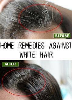 17 best ideas about causes of white hair on pinterest white hair men dyed white hair and