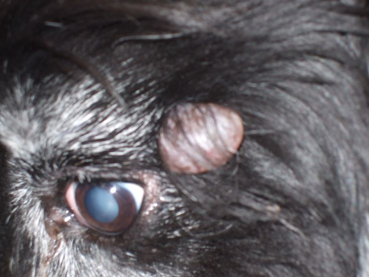 Benign good cyst by dogs eye surgical excision is