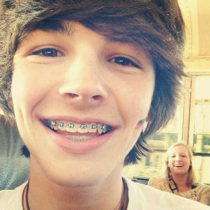 Hes hot and with with braces and dimplesomg