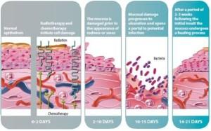 cancer pathophysiology diagram | Grad School FNP
