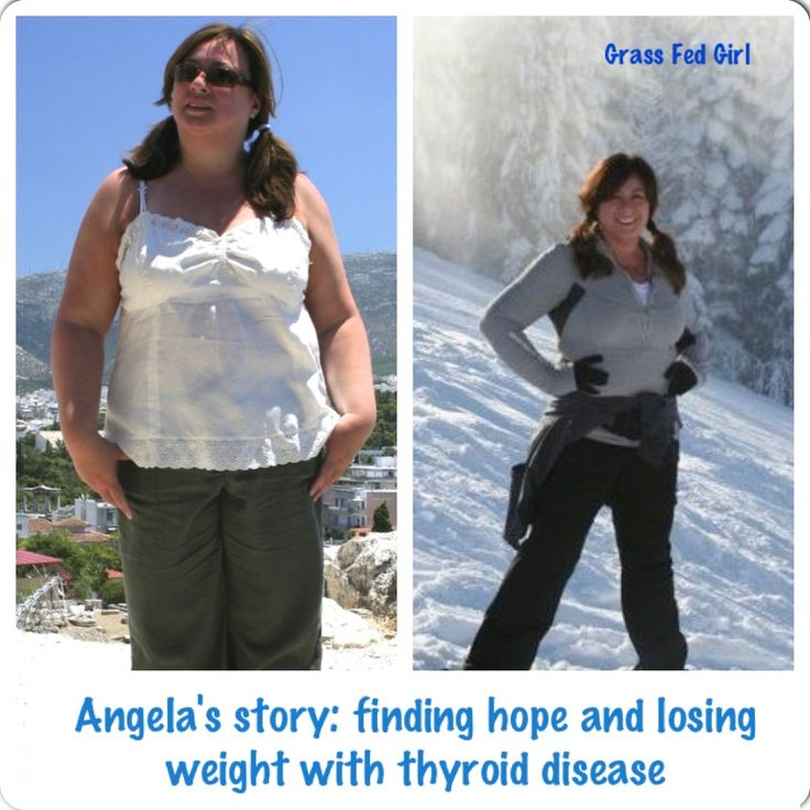 Angelas Story of Finding Hope with Hashimotos: Her tale of thyroid woes and weight loss