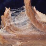 Fascia: A Hidden Piece of the Puzzle of Fibromyalgia Pain
