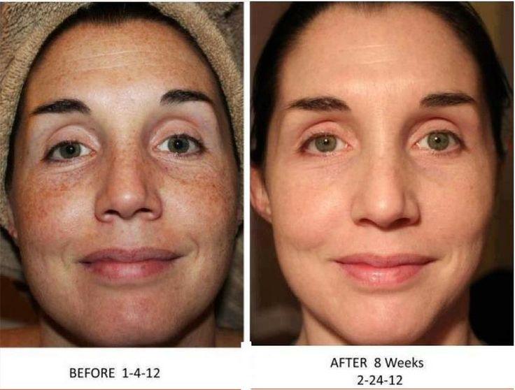 Image result for vitamin c for dark spots