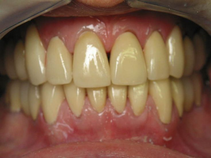 Improve your smile by not having yellow teeth pichelp