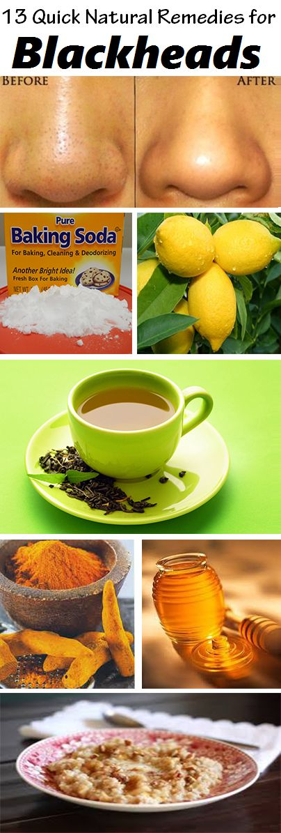 13 DIY Home Remedies for Blackheads :: Blackheads (Open Comedo) occur when your hair follicles become clogged with oil and dead