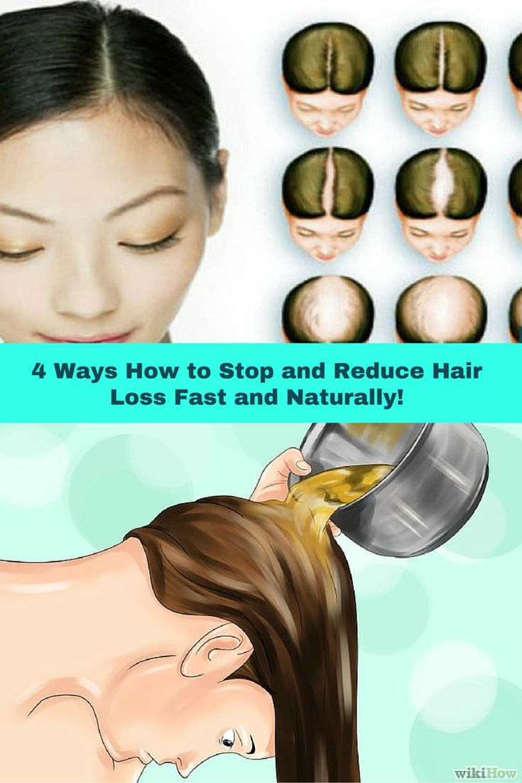 4 Ways How To Stop And Reduce Hair Loss Fast And Naturally