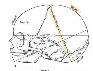 Fetal skull anatomical terms and measurements | Nursing