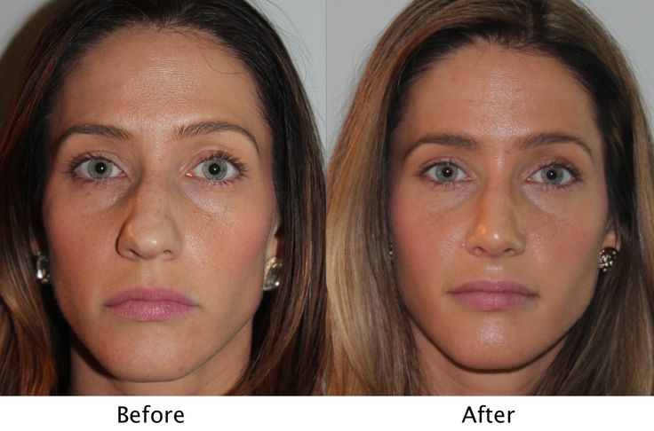 Female patient before and after sinus surgery sinus