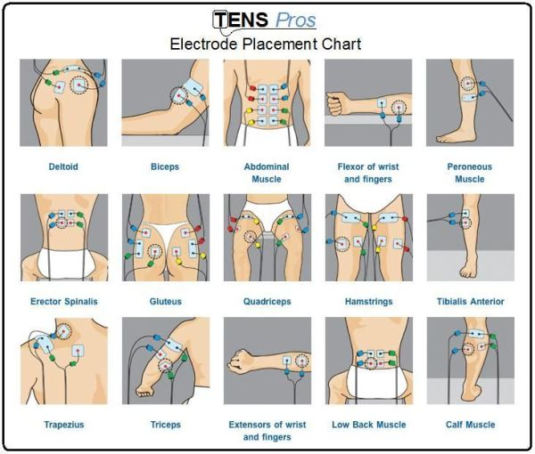 TENS unit electrode placement chart for different sports ...