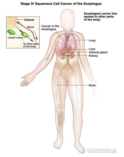 Esophageal Cancer Spread To The Liver