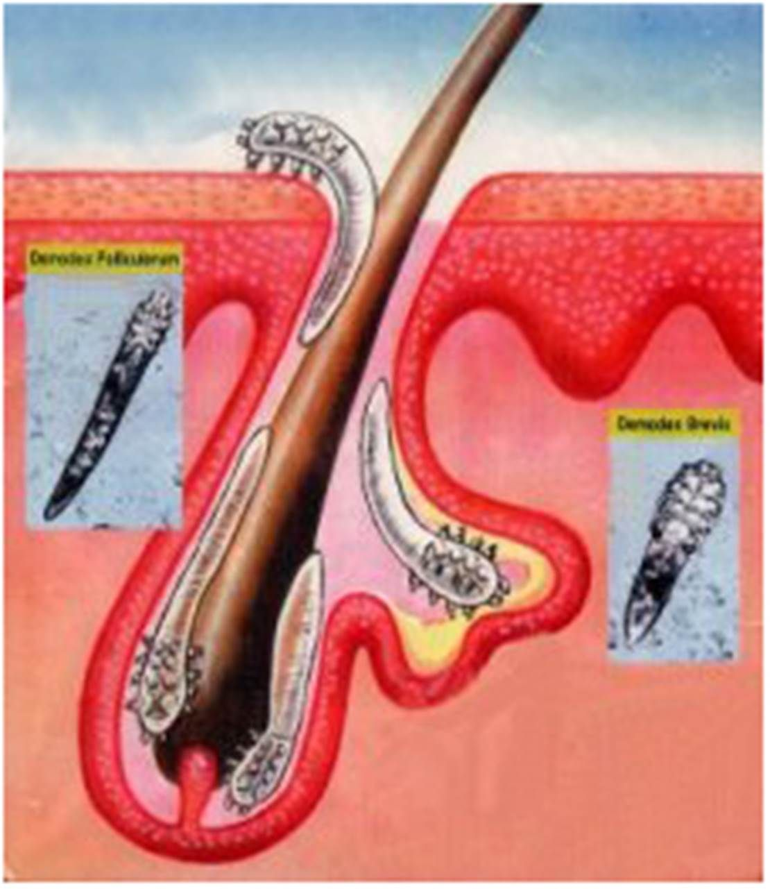 A High Number Of People Have Demodex Mites Without Knowing It And Many Patients Only Become