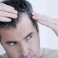 A Thinning Hairline or Male Pattern Baldness Androgenic Alopecia