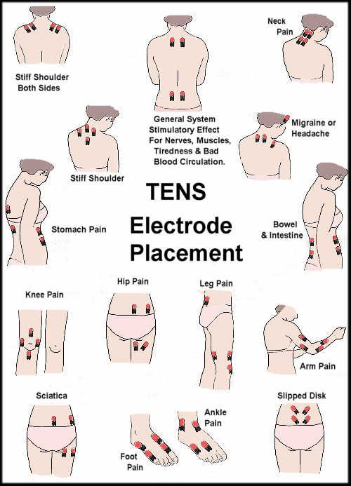 Tens Unit for All Areas of Pain | Chronic pain ...