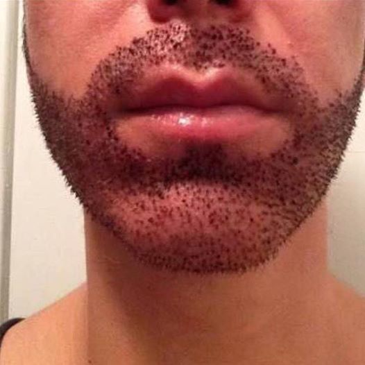 25 Unique Beard Transplant Ideas On Pinterest Beard