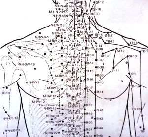 The most awesome images on the Inter | Acupuncture