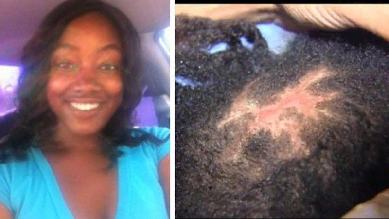 Infected Hairweave Buyer Beware Pinterest Bald