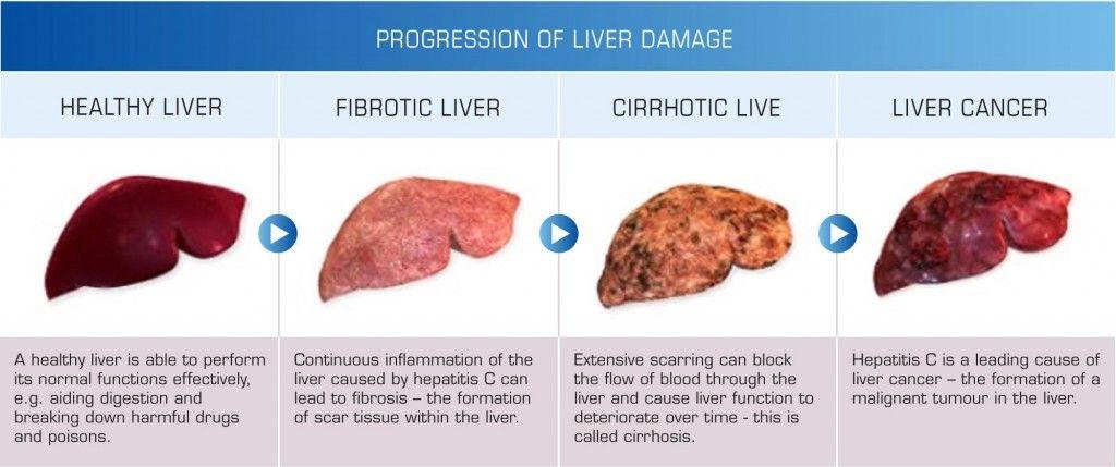 Resultado de la imagen para el diagrama de daño hepático