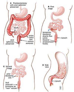 J pouch diagram Crohn's intestines   Crohn's Disease