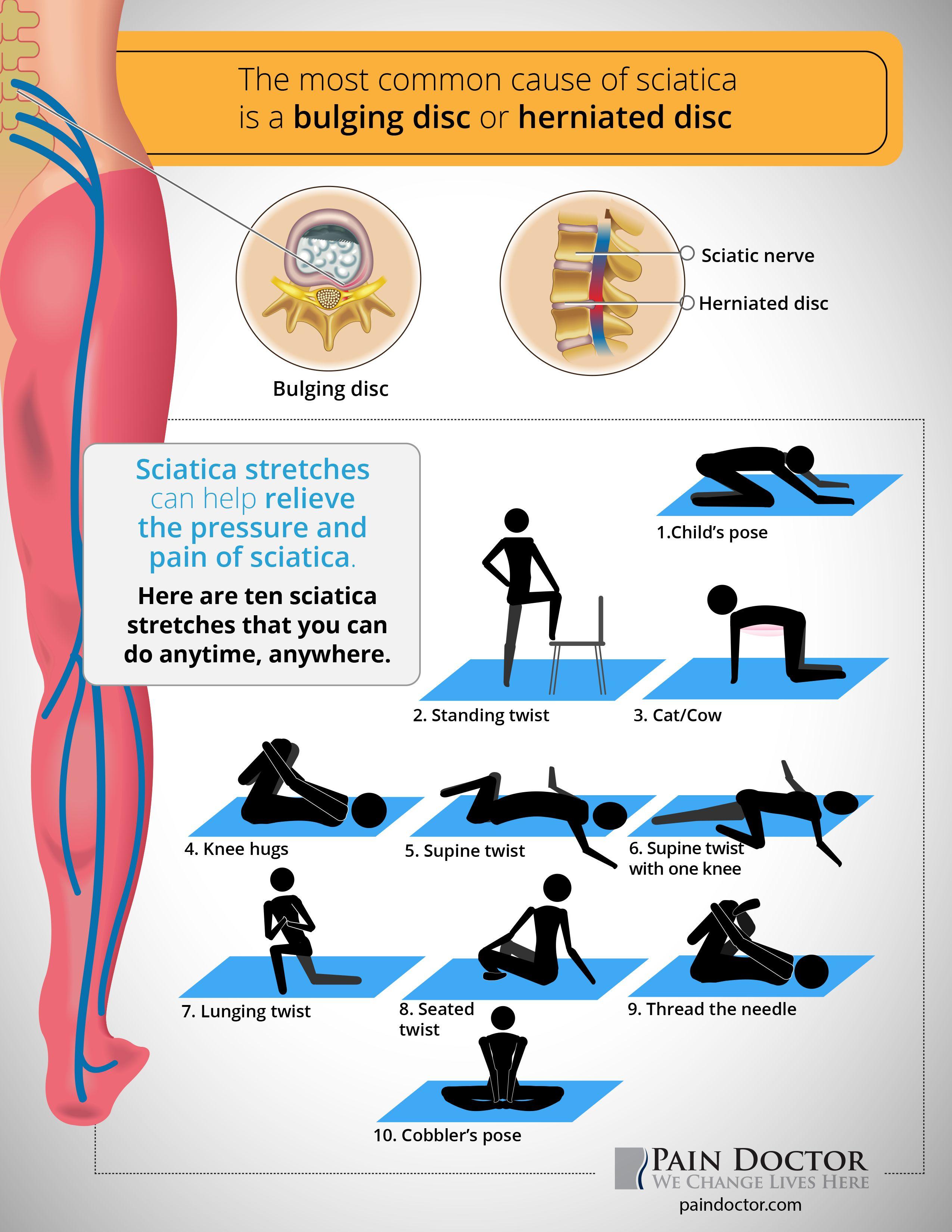 If You Have Sciaticpain What Sciatica Stretches Help