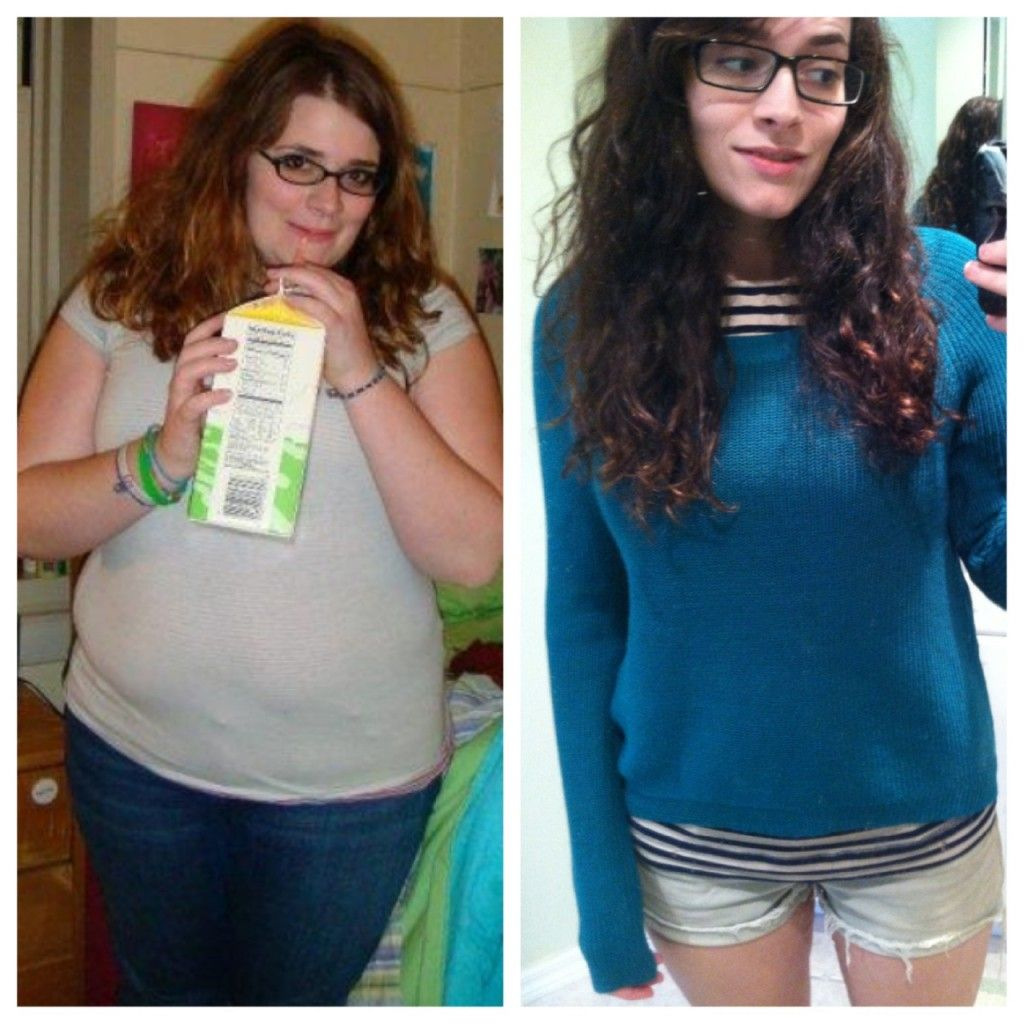 Weight Loss Before And After Teenage Girls Tumblrextreme