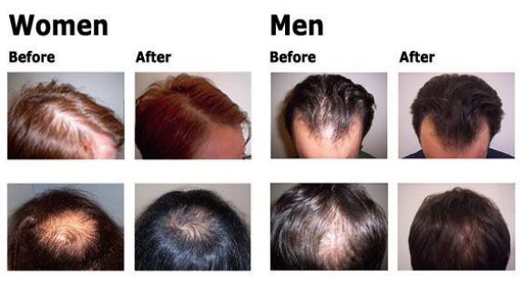 "Sydney hair loss mesotherapy at ""beauty and laser clinic"""