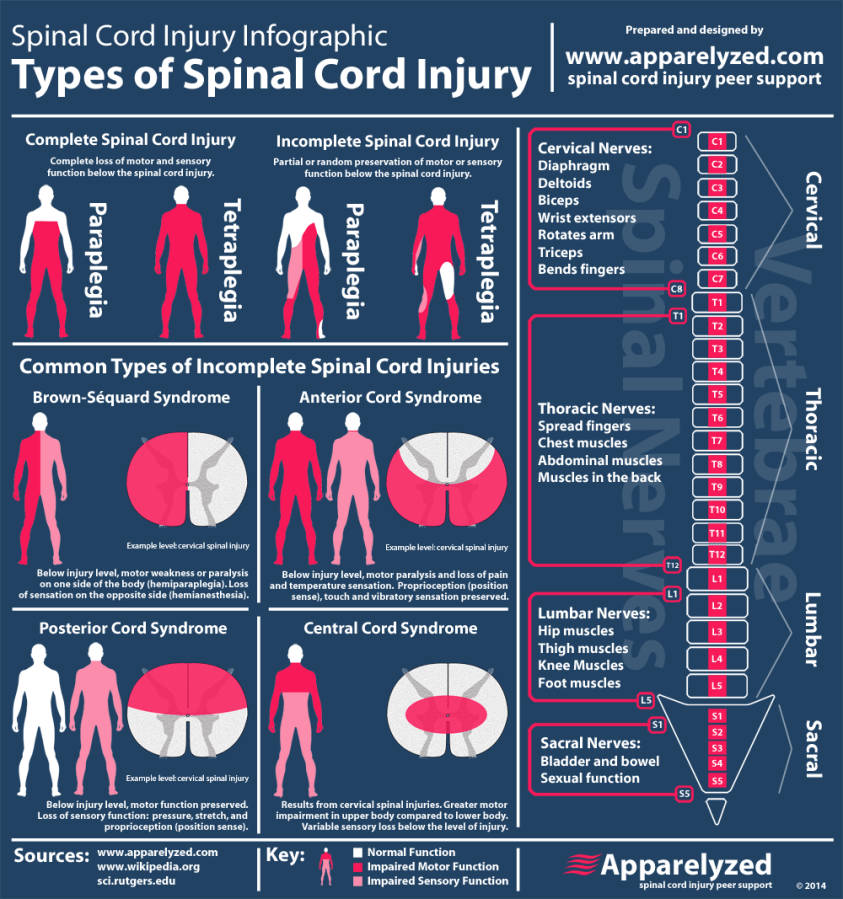 incomplete spinal cord injury infographic   PT stuff ...