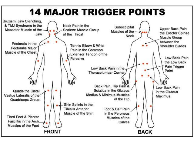 Image result for Trigger Point Massage