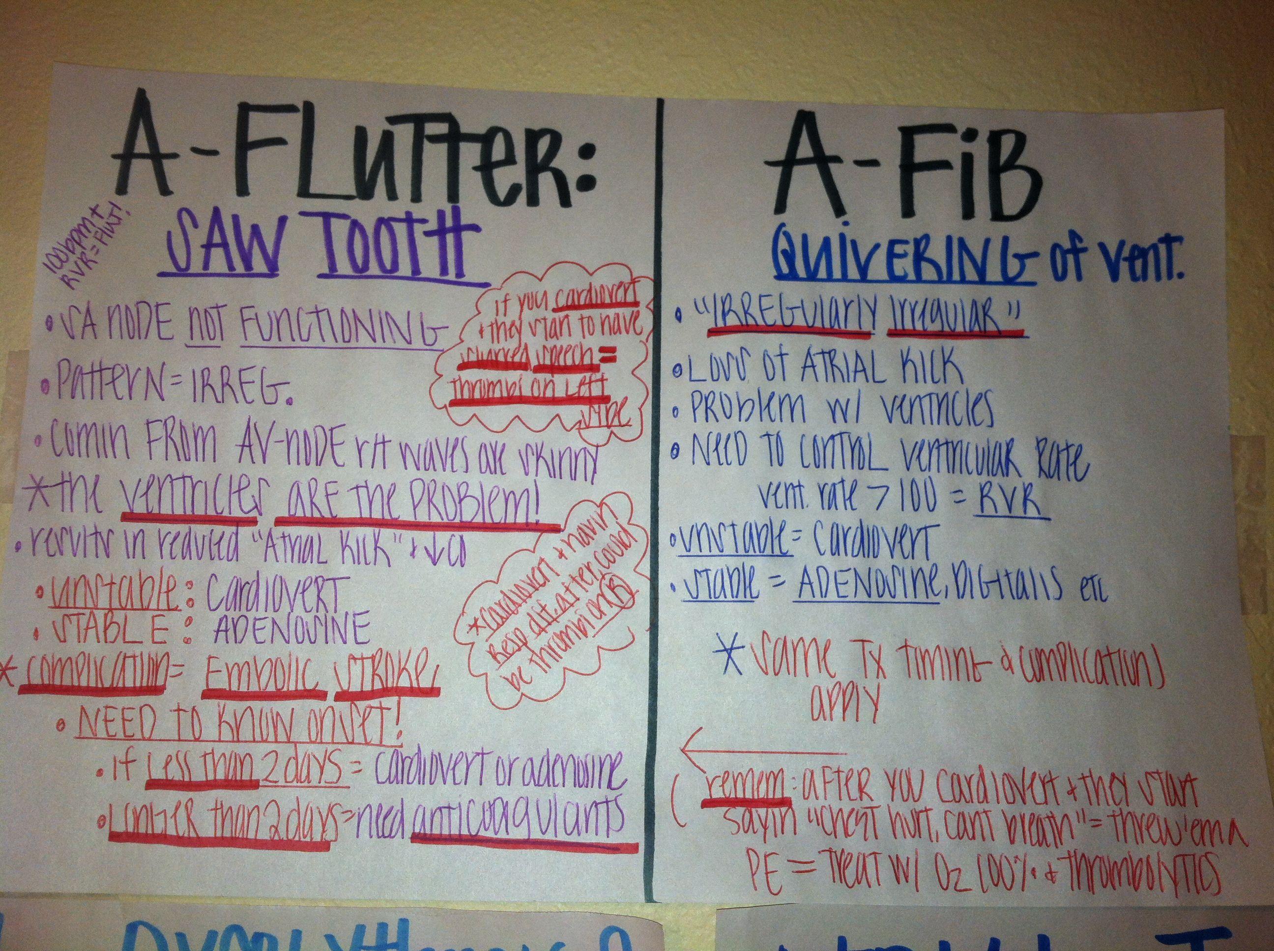 A Flutter Vs A Fib
