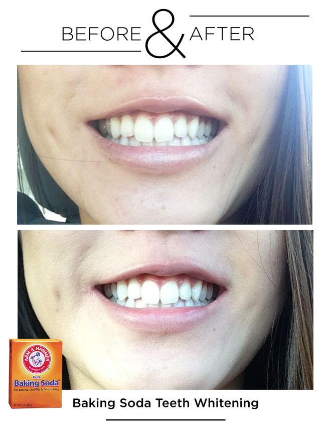 Before after teeth whitening with baking soda beauty
