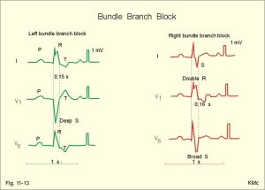 Right Bundle Branch Block vs Left Bundle Branch Block