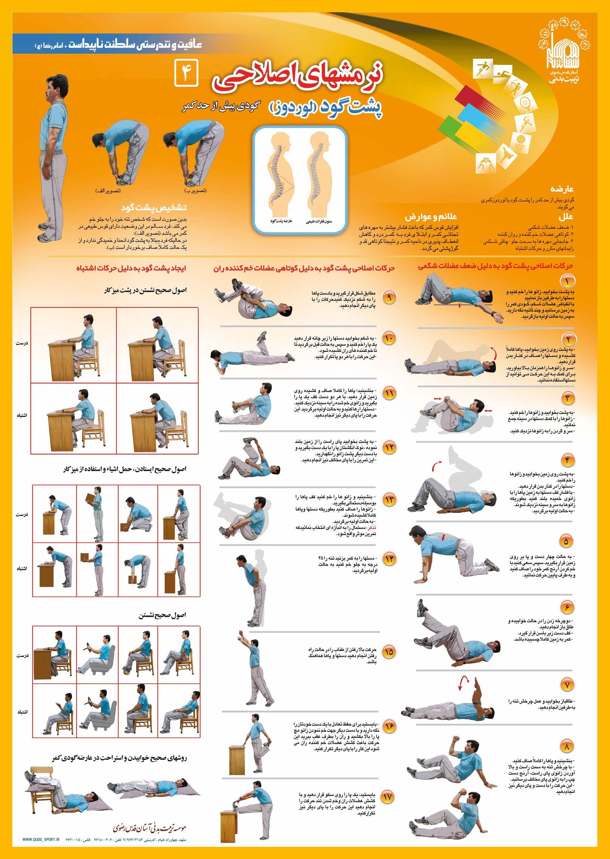 Corrective Exercise Lordosis