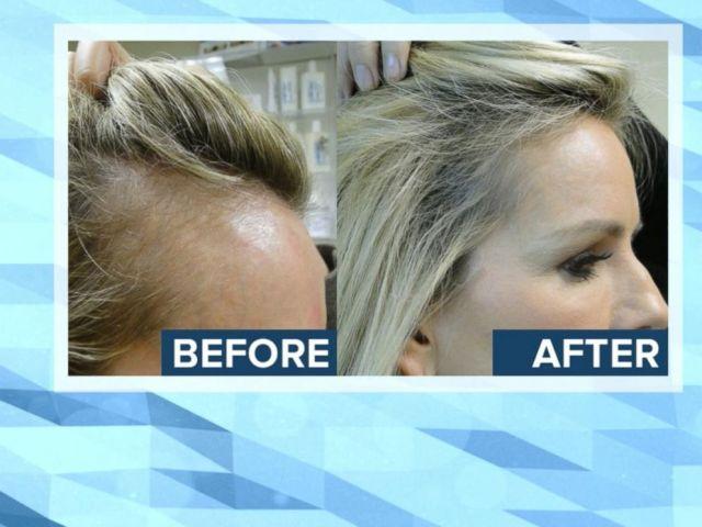 VIDEO: New Research Alert: Hair Loss in Women