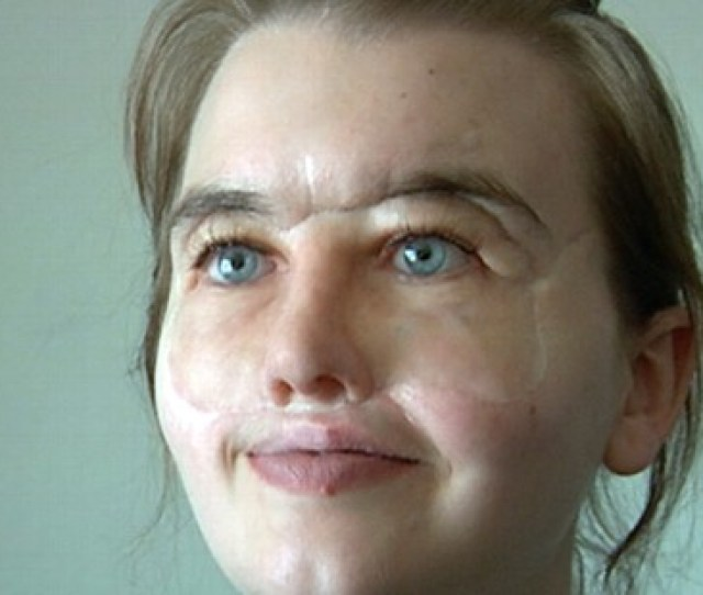 Video Shot  Times In The Head Chrissy Steltz Received A Face Transplant