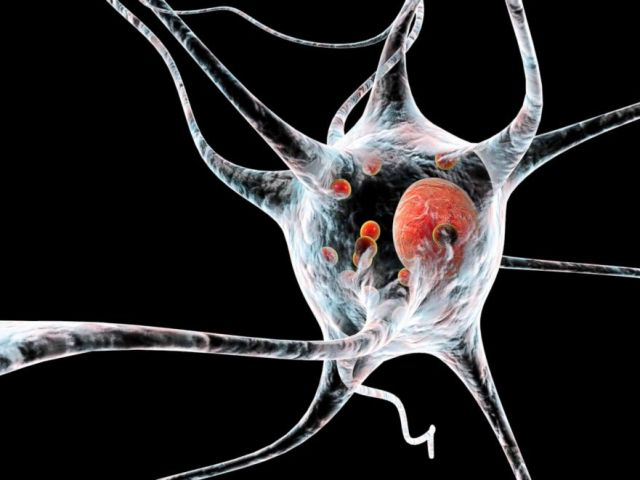 PHOTO: A Computer illustration of Parkinsons disease nerve cells.