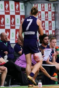 Image result for nat fyfe injury