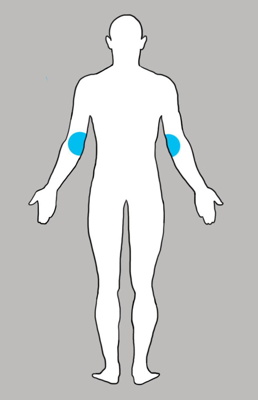 6. Локти боль, люди, тело